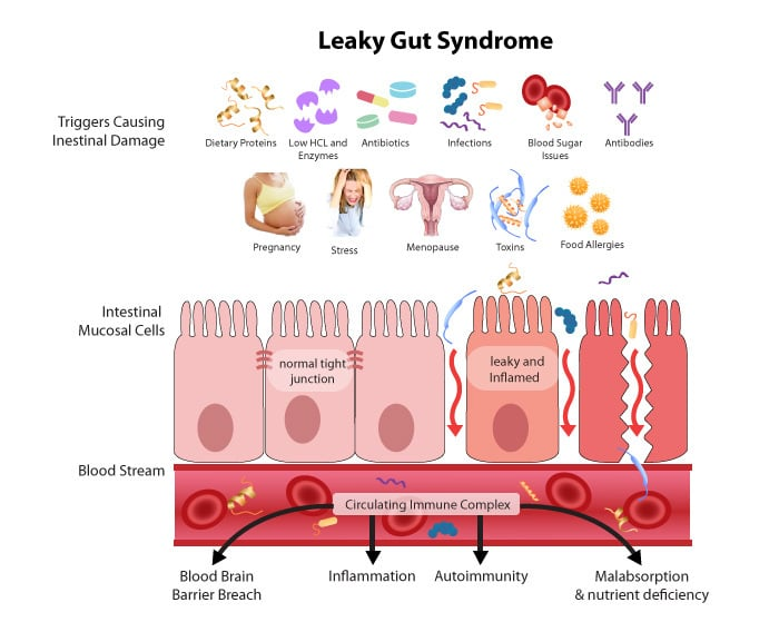Fatigue & Energy 10 Signs You Have Malabsorption & Leaky Gut
